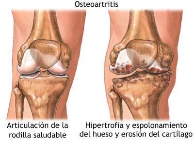osteoartritis que es